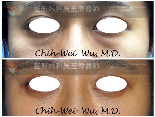 眼袋-%25E6%25BB%2591%25E5%258B%2595037