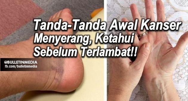 Mohon Bantu Share Ya!! Inilah Tanda-Tanda Awal Kanser Menyerang, Ketahui Sebelum Terlambat!!