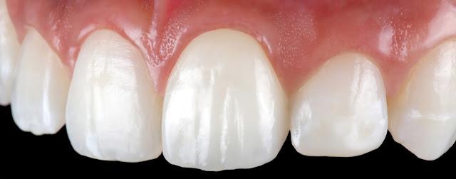 natural looking dental crown