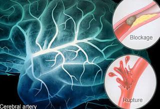 Penyebab penyakit stroke dan gejalanya, Cara Mengatasi Heat Stroke, Penyakit Stroke Dan Pengobatannya, Pengobatan Stroke Menahun, Ramuan Obat Gejala Stroke, Pengobatan Stroke Dengan Terapi Listrik, Obat Herbal Untuk Pasien Stroke, Obat Herbal Buat Stroke, Jahe Mengobati Stroke, Jumlah Penderita Penyakit Stroke Di Indonesia, Penyebab Penyakit Stroke Dan Gejalanya