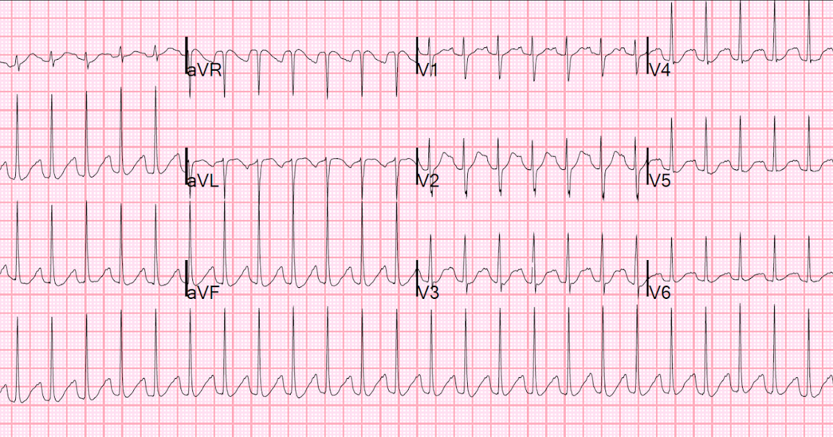 Dr  Smith's ECG Blog: QT Correction Formulas Compared to The