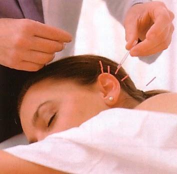 puede la acupuntura china ayudar con la pérdida de peso