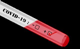 Kenali Perbedaan Rapid Test dan PCR Deteksi Virus Corona