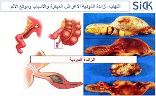 التهاب الزائدة الدودية الأعراض المبكرة والأسباب وموقع الألم