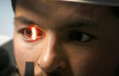 Pemindai Mata Google yang Bisa Deteksi Penyakit Jantung