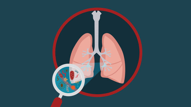 Chronic bronchitis symptoms