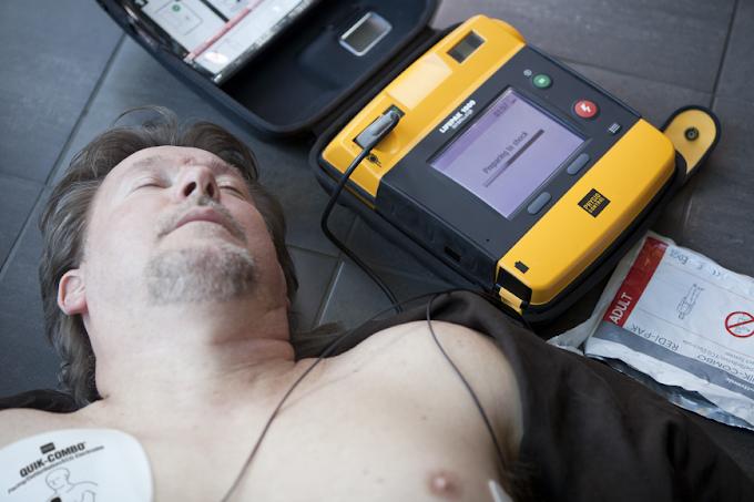 Saúde do DF recebe 80 monitores e 47 desfibriladores do Ministério da Saúde