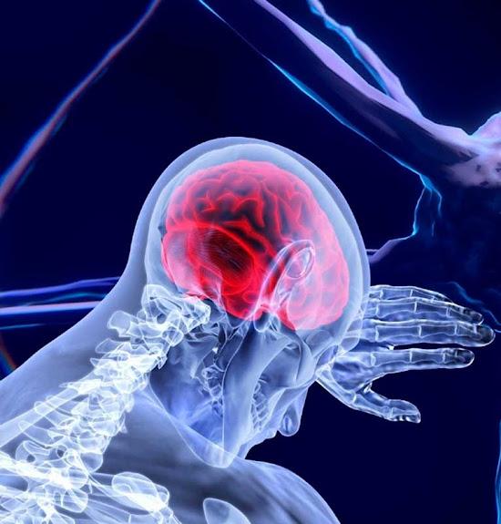 El ictus y sus consecuencias en el cerebro