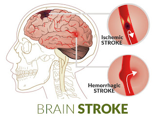brain stroke treatment in india