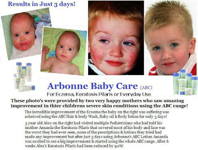 Step Outside Of The Box Finally A Solution To Your Eczema