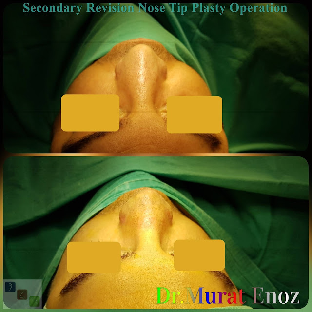 Revision Nose Tip Plasty in Men Istanbul Video, revision tipplasty in İstanbul,revision tipplasty in Turkey,revision tip plasty,revision tip plasty operation in Istanbul,Nose tip plasty,open technique tip plasty,