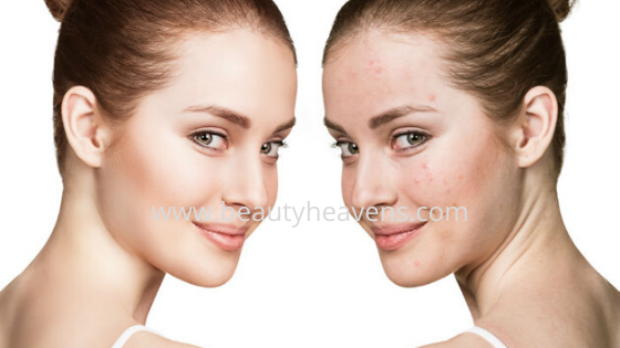 Get rid of beauty tips and acne for skin freshness and anti-acne . Beauty tips