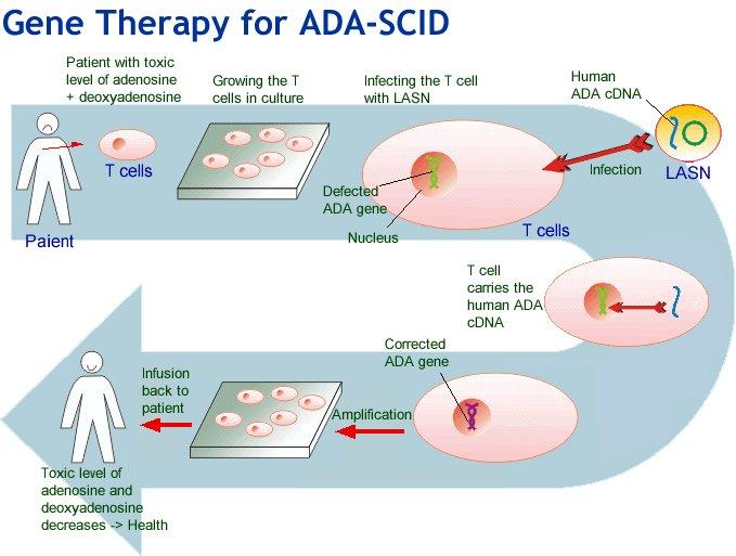ex vivo gene therapy pdf