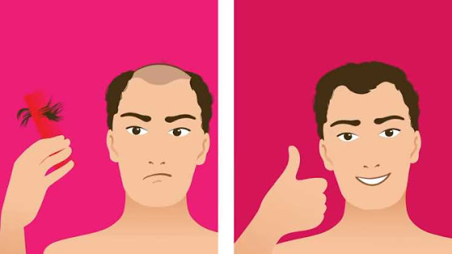 Best Hair Loss Treatment That Actually Work