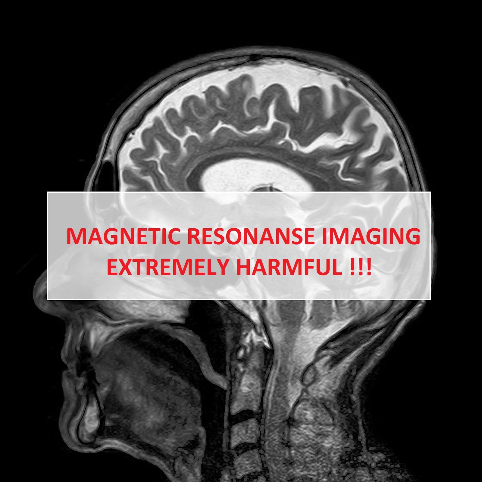 MRI (MAGNETIC RESONANCE IMAGING) – EXTREMELY HARMFUL
