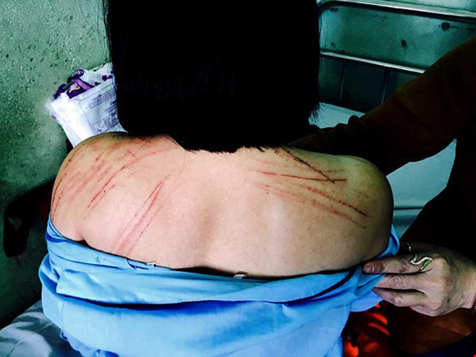 Gia Lai: Vụ nữ luật sư bị đánh gãy răng tại tòa - Công an thụ lý điều tra