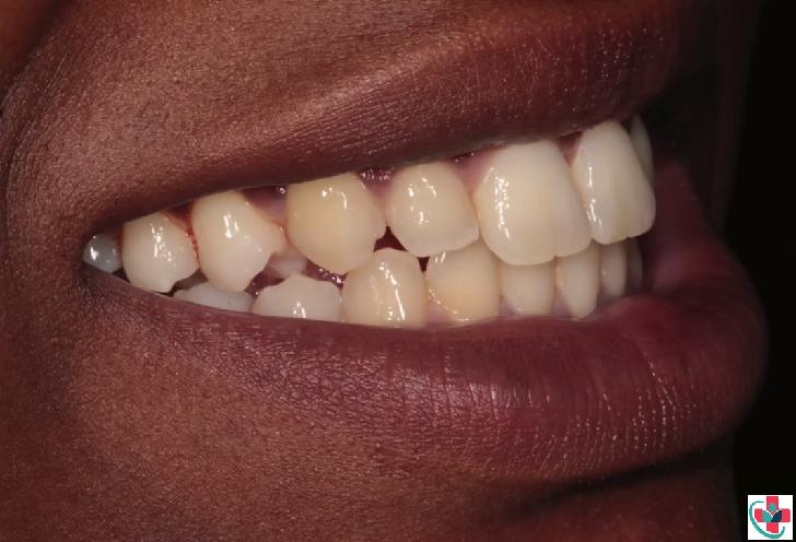 teeth becoming yellow