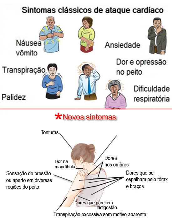 Sintomas clássicos e novos sintomas de ataque cardíaco