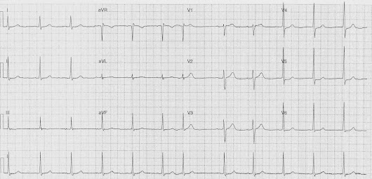 ECG of the Week - 3rd November 2014