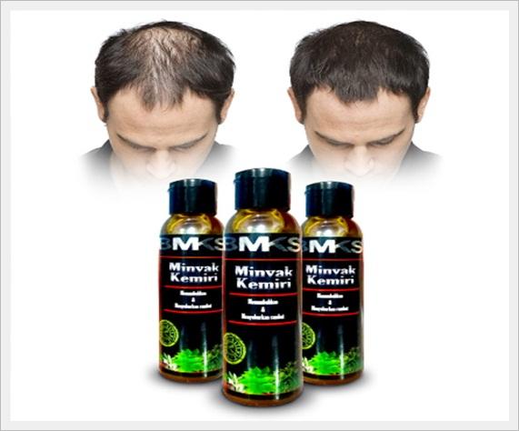 Produk lokal untuk mengatasi rambut rontok