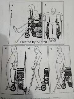 melatih penderita lumpuh dengan alat bantu kruk