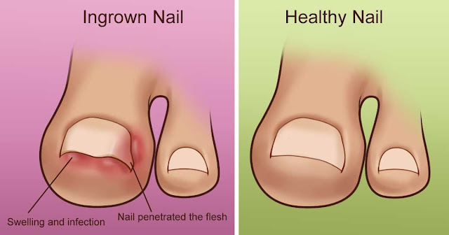 Natural Remedies to treat ingrown toenails at home! Must Read and must Try!