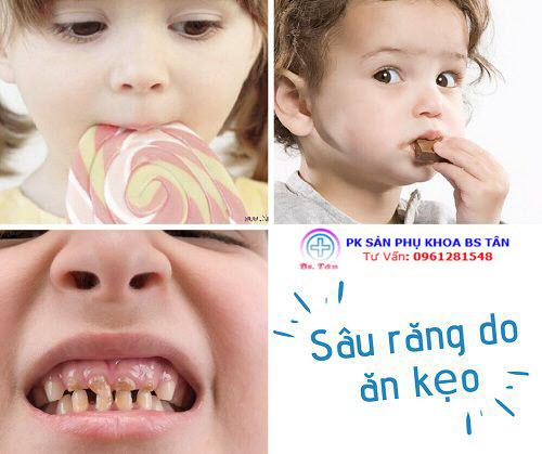 sâu răng do ăn kẹo