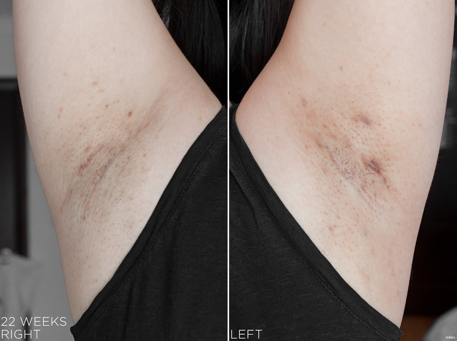 tria Hair Removal Laser Armpits Hair 22 Weeks, 5 months