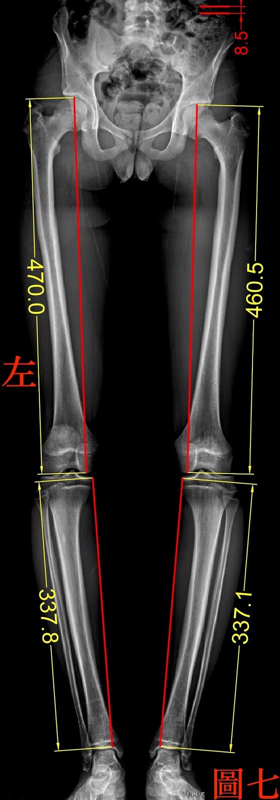 脊椎側彎檢查, 脊椎側彎度數, 脊椎側彎矯正, 脊椎側彎治療, 脊椎側彎矯正運動