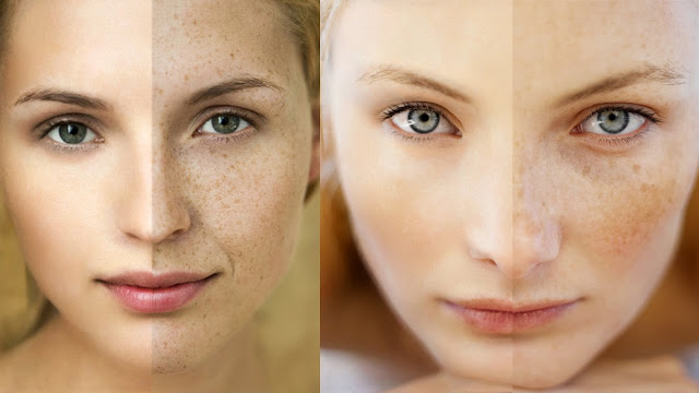 How to Get rid of Wrinkles and Scares at home | Health Care Solutions