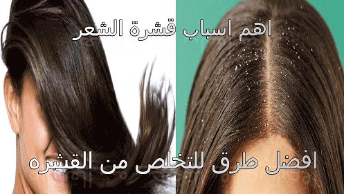 علاج قشرة الشعر نهائيا علاج قشرة الشعر للرجال اوللنساء