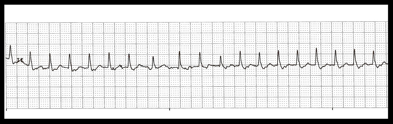 Heart arrhythmia rymthm strip readings