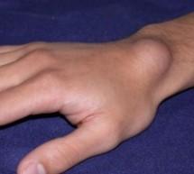 ganglion kist ganglion kisti nedir ganglion nedir el bilegi ustundeki sislik nedir ganglion kist tedavisi nasil olur