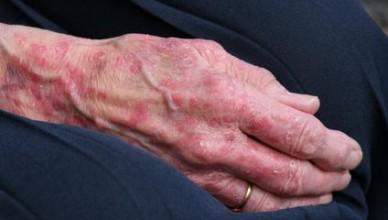 bolile pielii vara la batrani