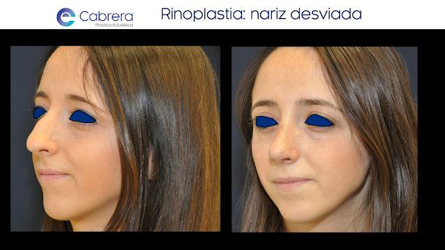 Caso antes y después 4 Rinoplastia Córdoba