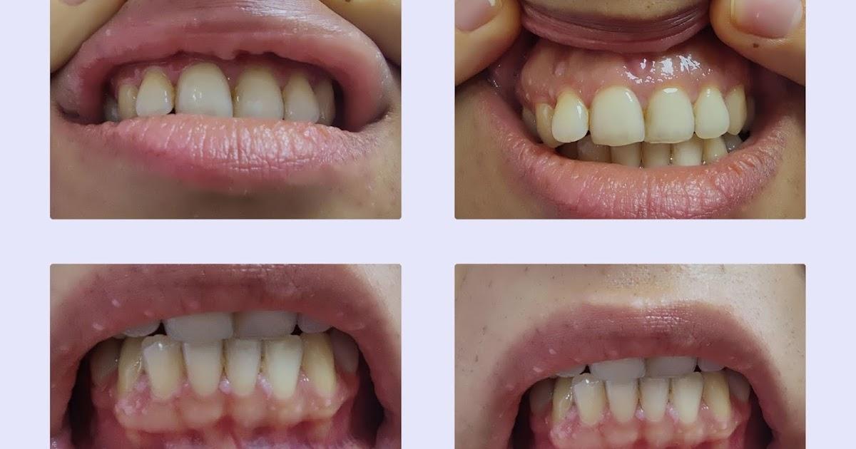 Hpv wart lip, Hpv mouth pain - Hpv wart lip