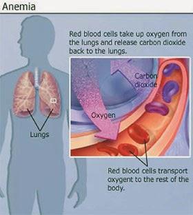 Cara Menyembuhkan Penyakit Anemia Aplastik