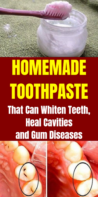 Homemade Toothpaste That Can Whiten Teeth, Heal Cavities and Gum Diseases
