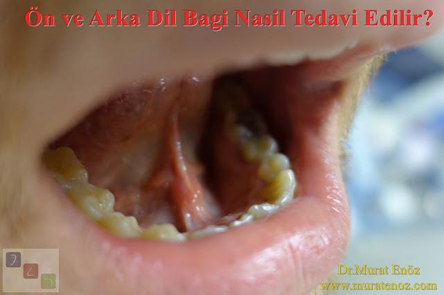 Ön ve arka dil bağı nasıl tedavi edilir? - Ön dil bağı tedavisi - Arka dil bağı tedavisi - Ön dil bağı ameliyatı - Arka dil bağı ameliyatı - Ön dil bağı kesilmesi - Arka dil bağı kesilmesi - Anterior tongue tie treatment - Treatment of posterior tongue tie