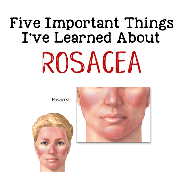 A graphic of a woman who has rosacea