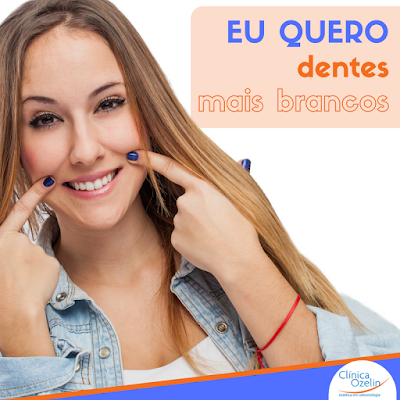 Clareamento dental na Clínica Ozelin