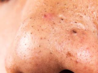 Cara Alami Menghilangkan Komedo Hitam Membandel di Hidung