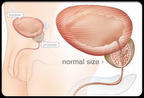 prostatic hypertrophy