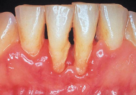 وصفات طبيعية لعلاج تخلخل الاسنان