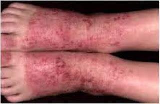 Obat eksim kering pada telapak kaki