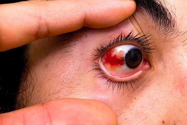 Làm tan máu bầm trong mắt