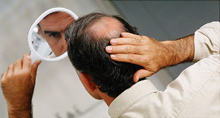 Environmental Factors for Hair Loss