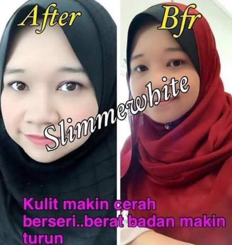 slimmewhite kulit cerah