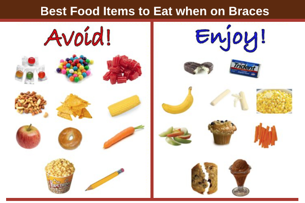 What Foods Can I Not Eat With Braces