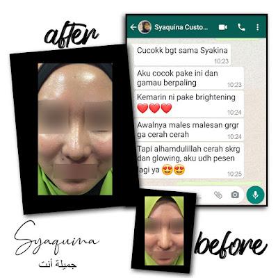 Syaquina Skincare Dokter Perawatan Wajah
